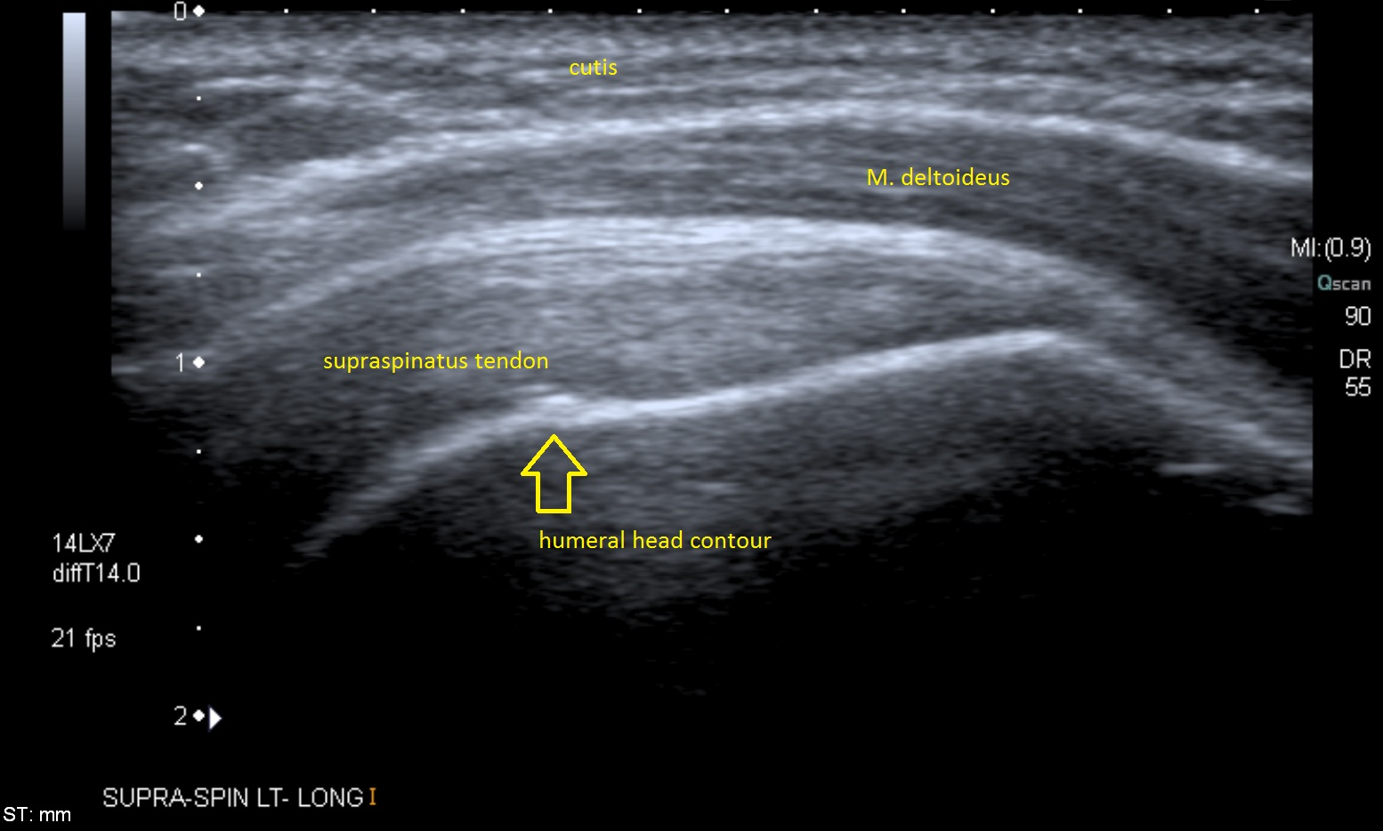 Lectura Crítica 1 – Ultrasound of the shoulder: asymptomatic findings in men.